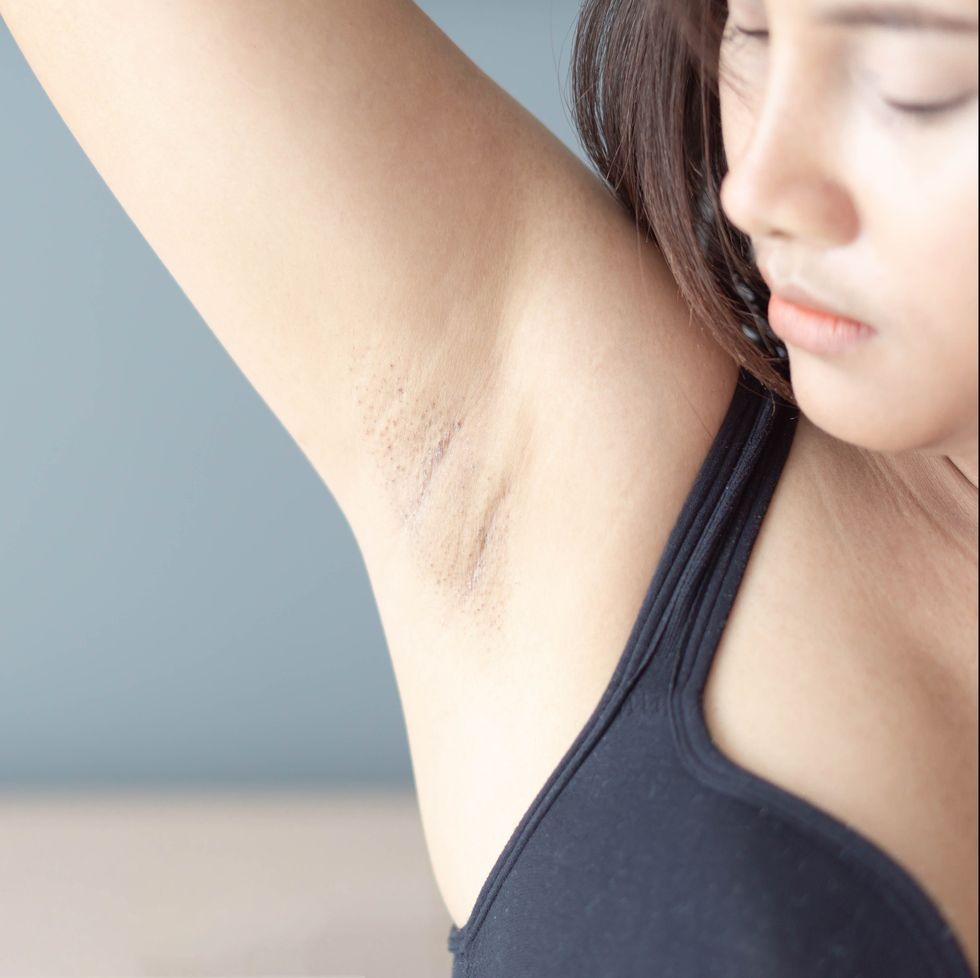 11 Symptoms Of Breast Cancer In Women That Aren T Lumps Skyy